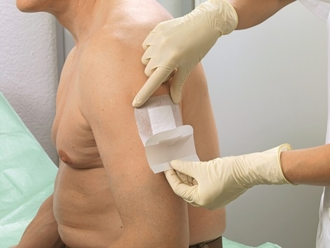 Cosmopor E opatrunek na rany pooperacyjne i pozabiegowe